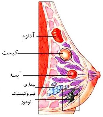 7 خطای رایج زنان درباره سرطان سینه,سرطان سینه چیست,علائم سرطان سینه,نشانه های سرطان سینه