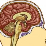 what is dementia disease