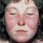 بیماری لوپوس+علائم,بیماری لوپوس و علائم آن,علائم بیماری لوپوس چیست ؟,بیماری لوپوس + عکس,بیماری لوپوس