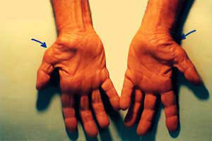 carpal2-tunnel-syndrome