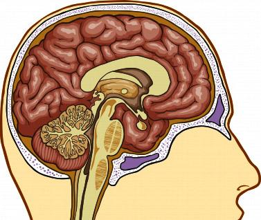 what-is-dementia-disease