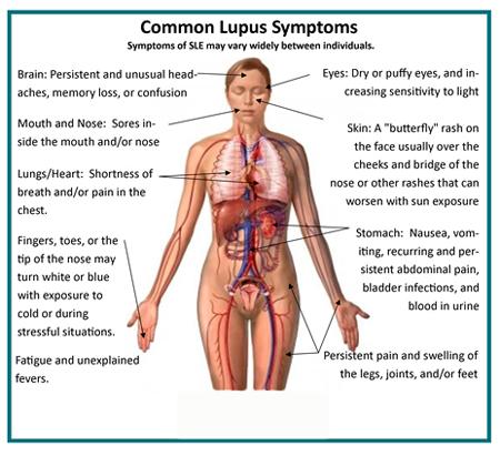 راه درمان بیماری لوپوس,بیماری لوپوس + درمان,بیماری لوپوس درمان دارد,بیماری لوپوس و درمان آن
