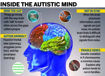 بیماری اوتیسم+عکس,بیماری اوتیسم در بزرگسالان,بیماری اوتیسم در کودکان