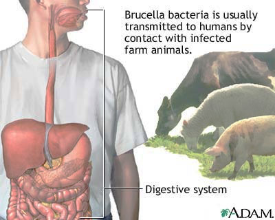 brucellosis-is-a-disease