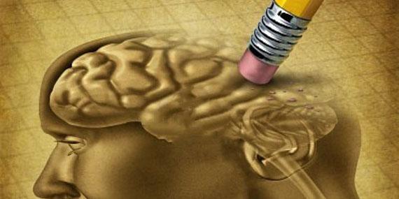 تست هوش برای الزایمر,تست روانشناسی الزایمر