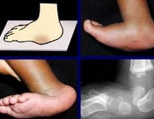 بیماری پای نوزاد,نوزاد پا پرانتزی,نوزاد پا چنبری,بیماری پا در کودکان